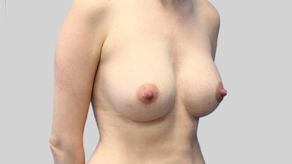clinique-dr-karl-schwarz-montreal-Breast-Augmentation4-after