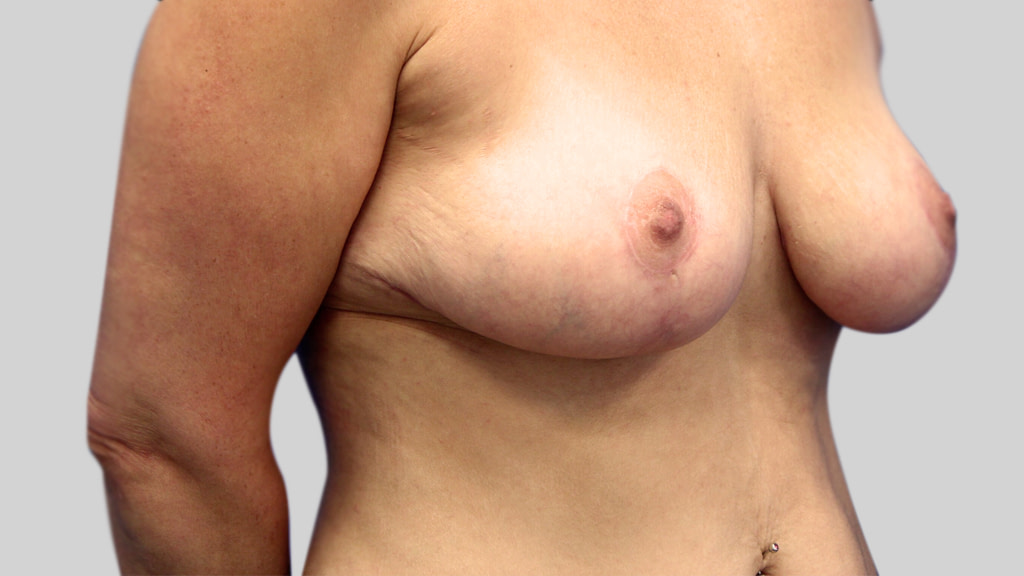 clinique-dr-karl-schwarz-montreal-Breast-Lift1-after