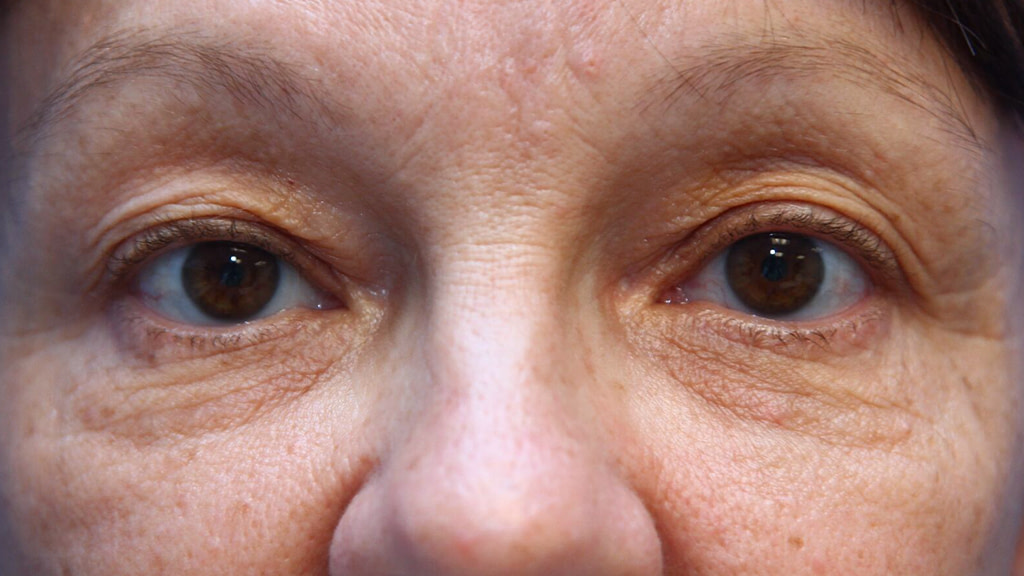 clinique-dr-karl-schwarz-montreal-Eyelid-Surgery-1-after