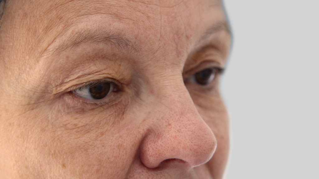 clinique-dr-karl-schwarz-montreal-Eyelid-Surgery-2-before