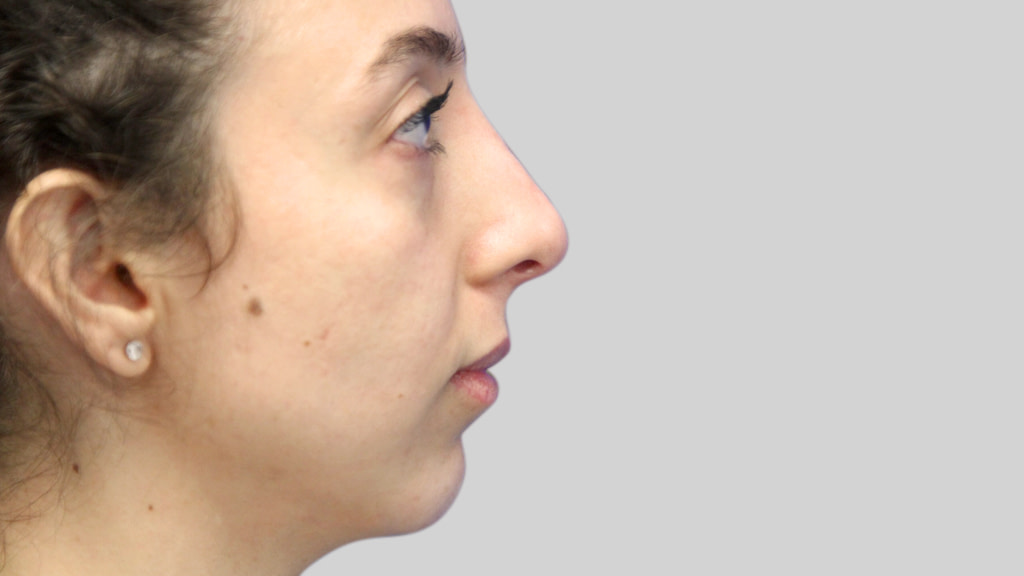 clinique-dr-karl-schwarz-montreal-NON-SURGICAL-NOSE-JOB2-after