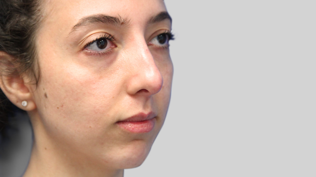 clinique-dr-karl-schwarz-montreal-NON-SURGICAL-NOSE-JOB3-after