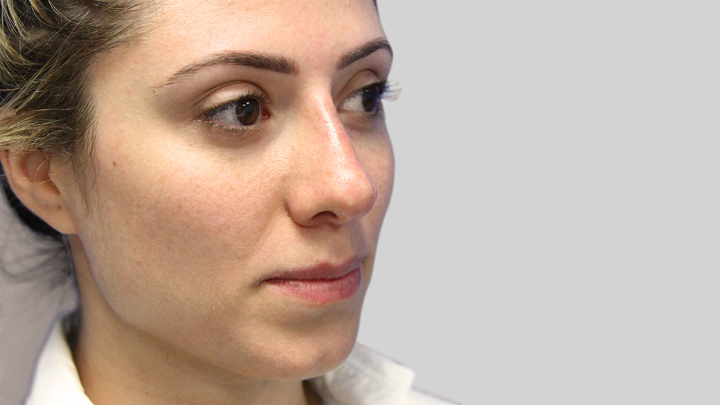 clinique-dr-karl-schwarz-montreal-NON-SURGICAL-NOSE-JOB4-after
