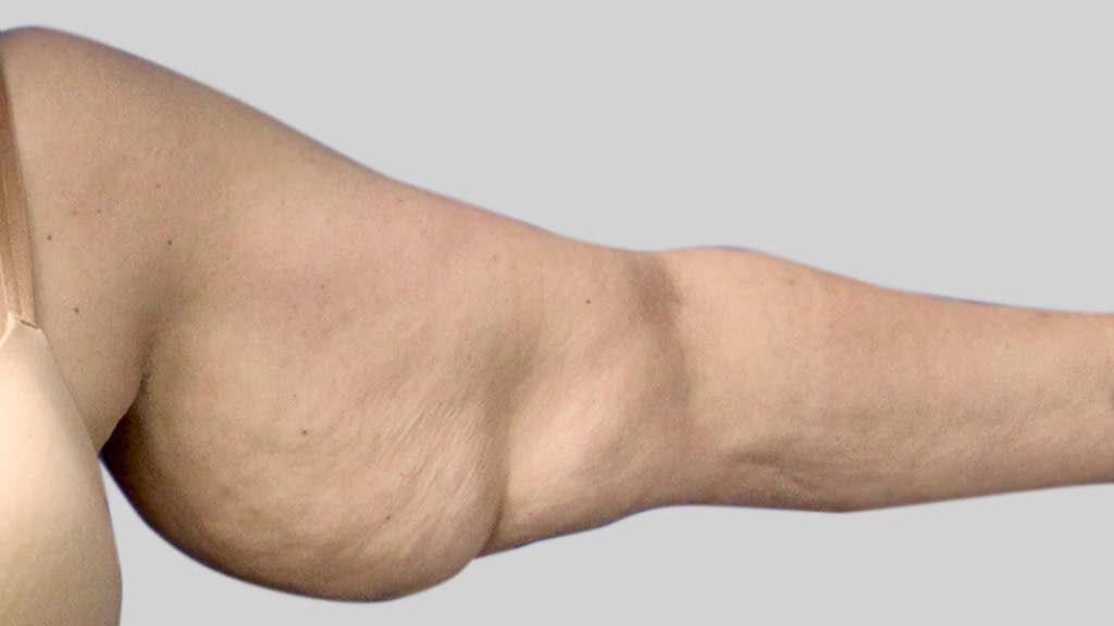 clinique-dr-karl-schwarz-montreal-arm-lift-1-before