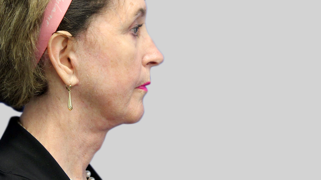 clinique-dr-karl-schwarz-montreal-face-neck-lift-1-after