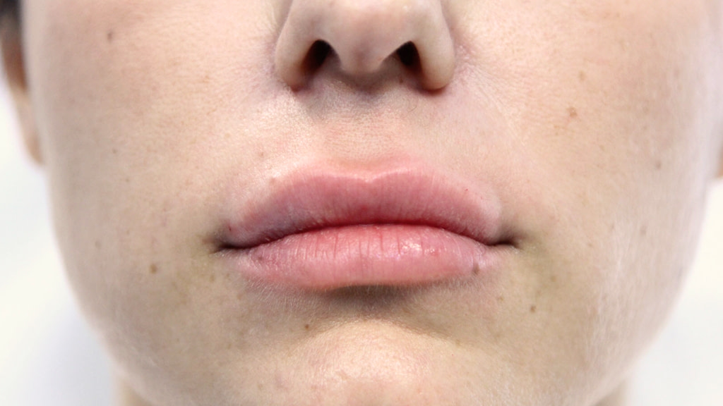 clinique-dr-karl-schwarz-montreal-lip-augmentation-after