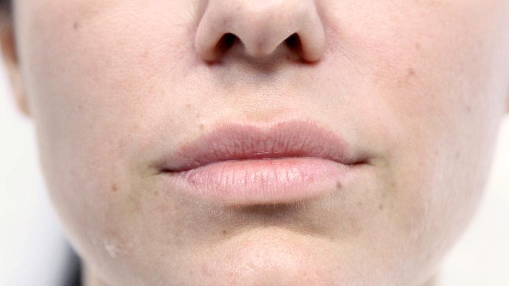 clinique-dr-karl-schwarz-montreal-lip-augmentation-before