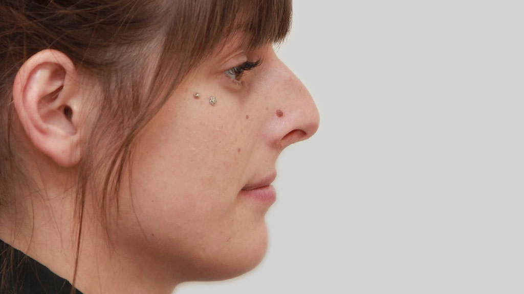 montreal nose job female