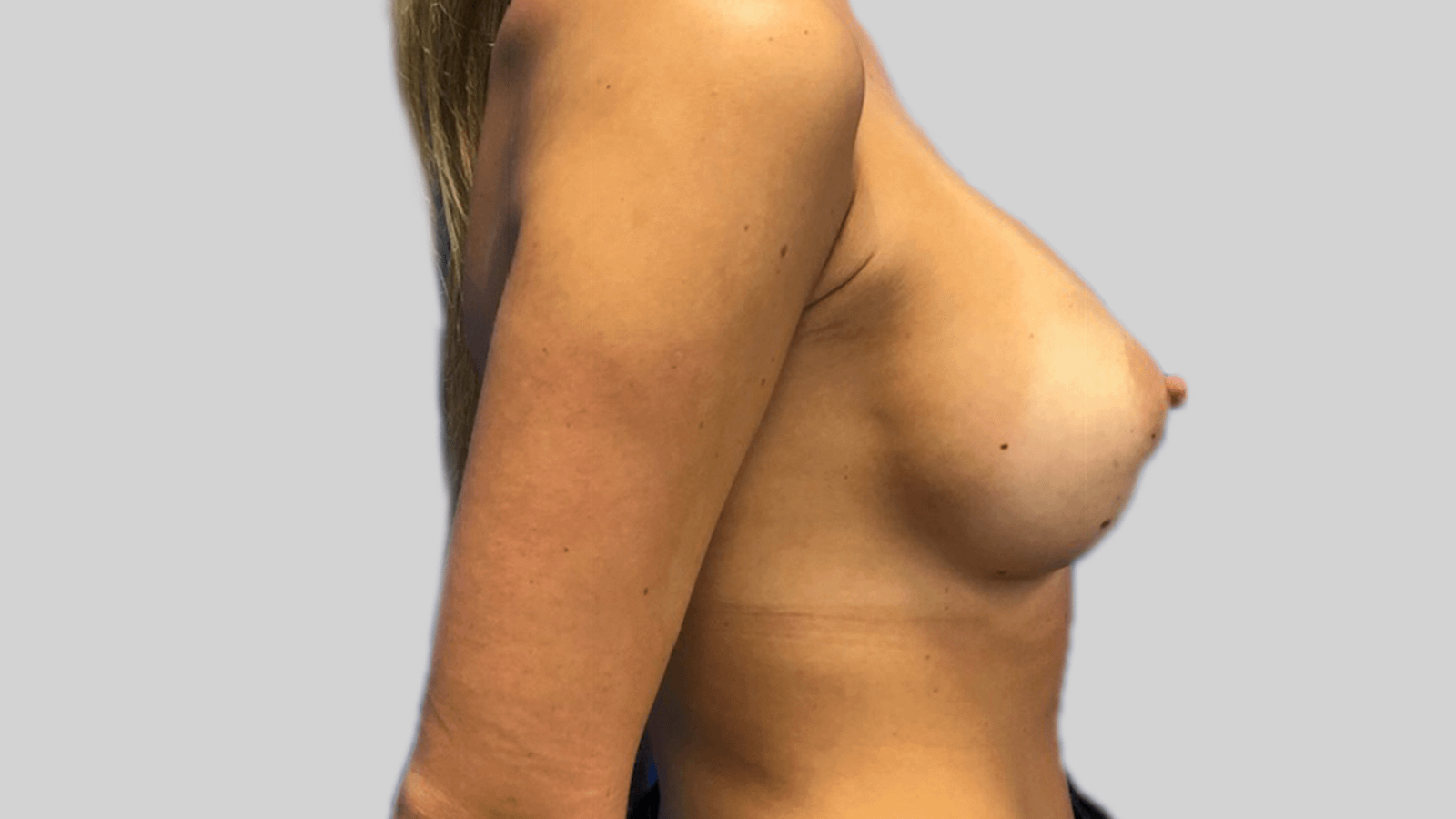 Breast-Augmentation-after-1