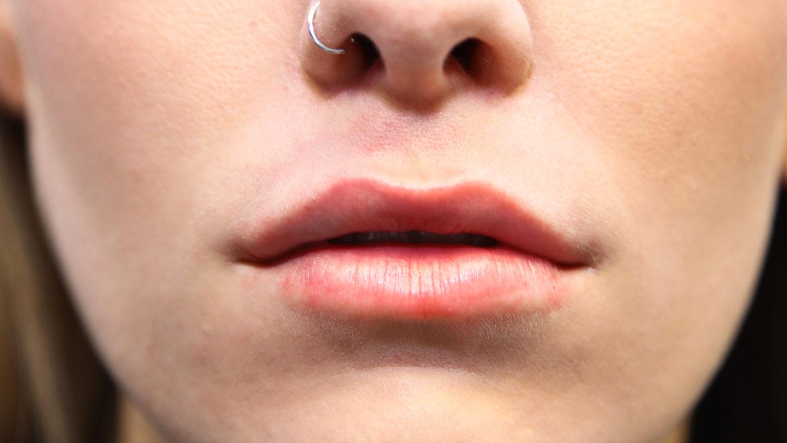 Lip-Augmentation-after