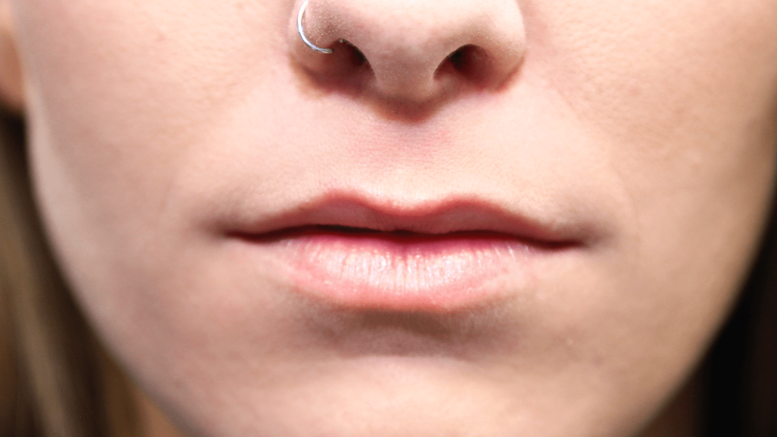 Lip-Augmentation-before