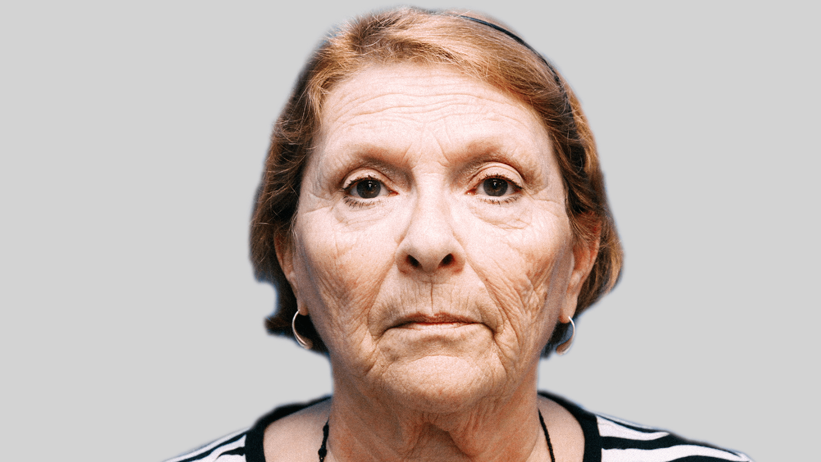lifting-visage-before-1