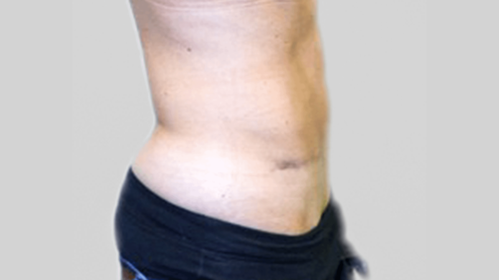 tummytuck-after-2