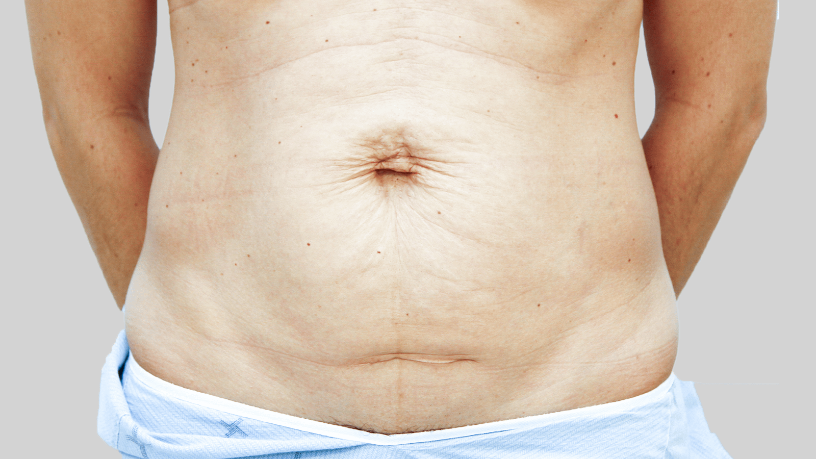 tummytuck-before-1