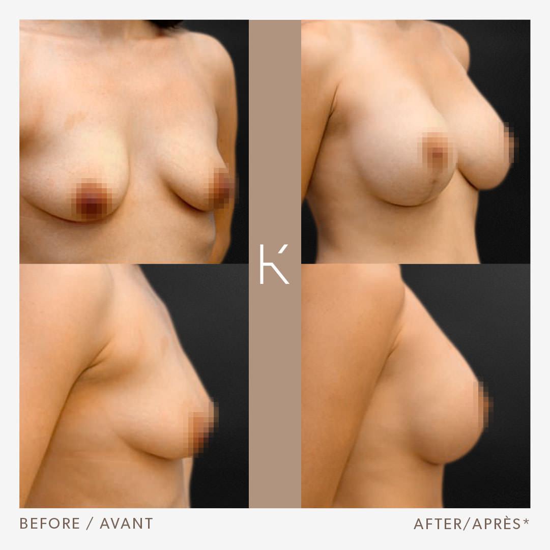 Breast Augmentation and Mastopexy