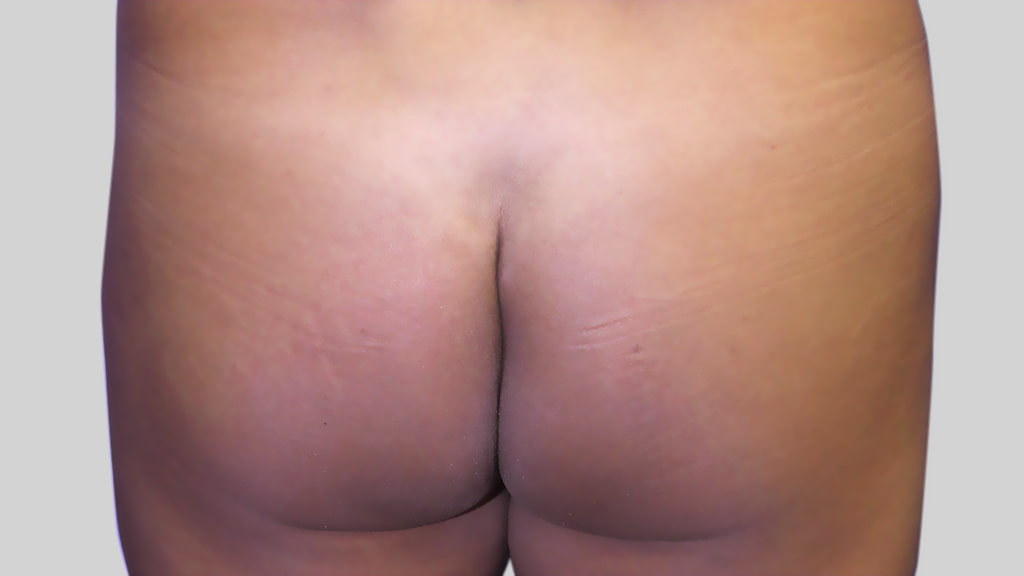 montreal brazilian butt Lift before
