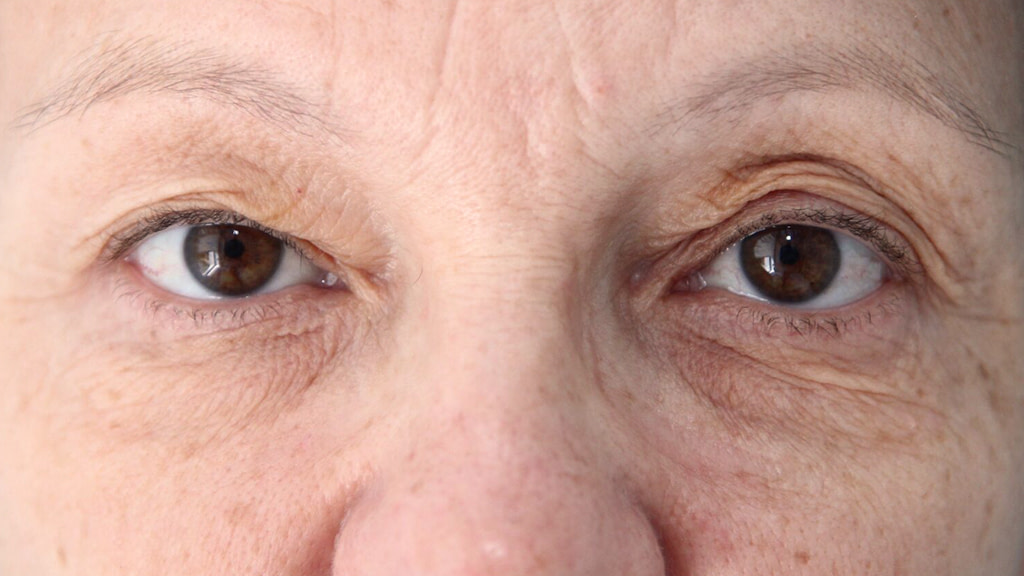 clinique-dr-karl-schwarz-montreal-Eyelid-Surgery-1-before