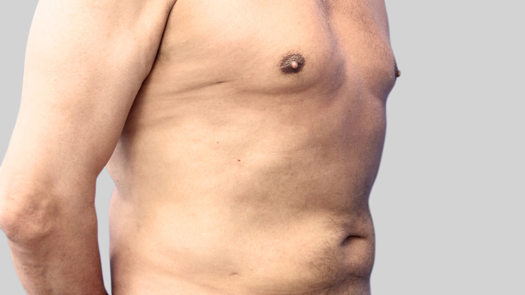 montreal-Tummy-Tuck-men after