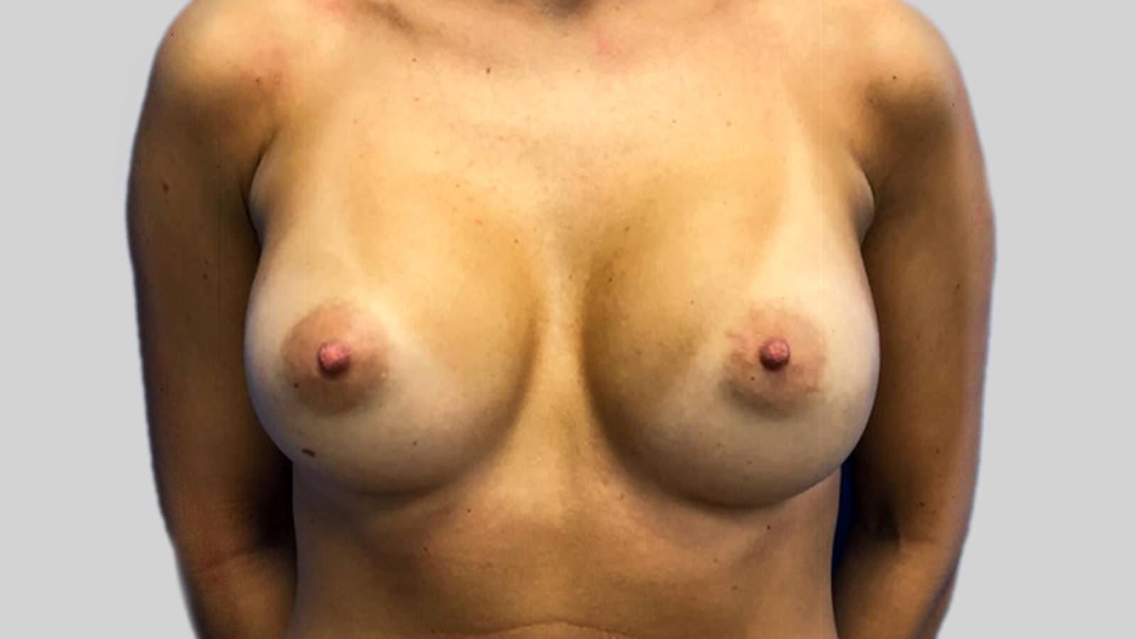breast augmentation montreal